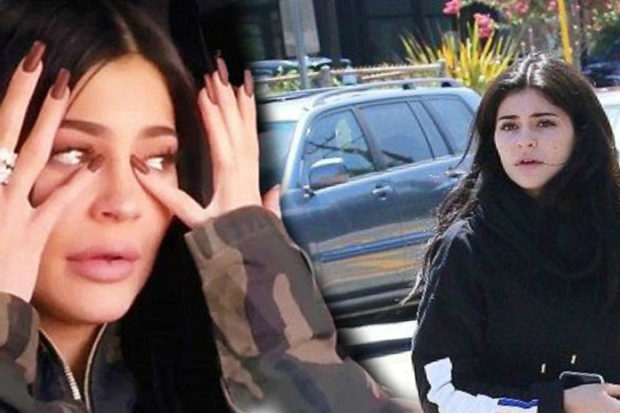 Kylie Jenner Suffers Pregnancy Complications