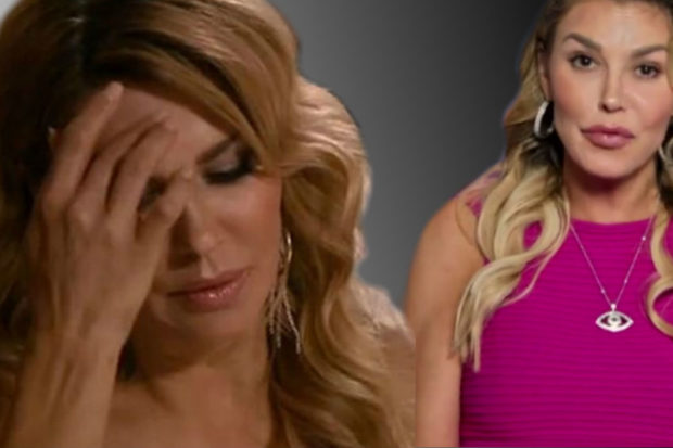 'RHOBH' Star Paralyzed After Botched Hair Removal Procedure