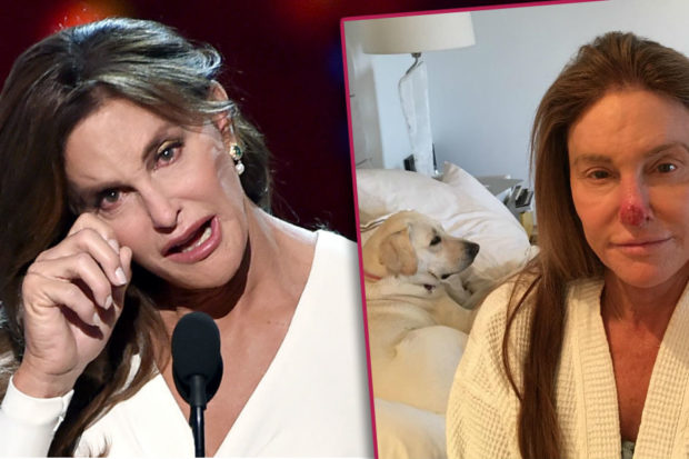 Caitlyn Jenner Reveals Shocking Cancer Diagnosis
