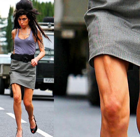 Get The Skinny On Amy Winehouse