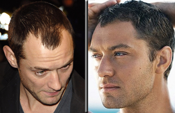Christian Dior Cures Jude Law's Baldness