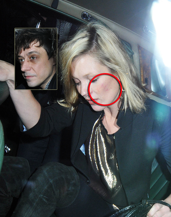 Kate Moss and Jamie Hince Are Scraping By