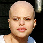 Jade Goody Confronted by Hammer-Wielding Whack-Job