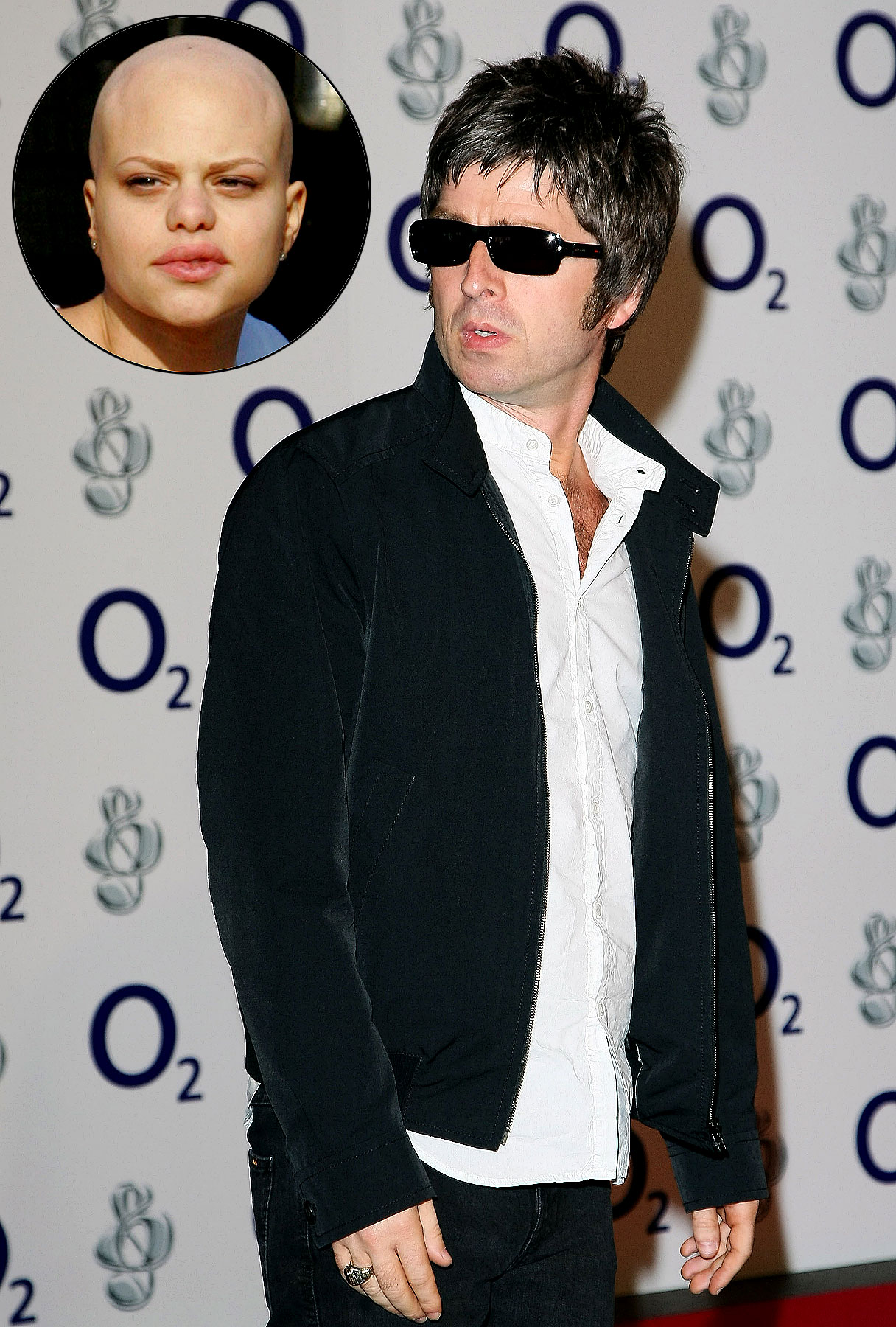 Noel Gallagher: Jade Goody Story Is 'Embarrassing' to Britain