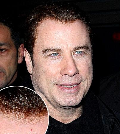 John Travolta's Hair FAIL (PHOTOS)