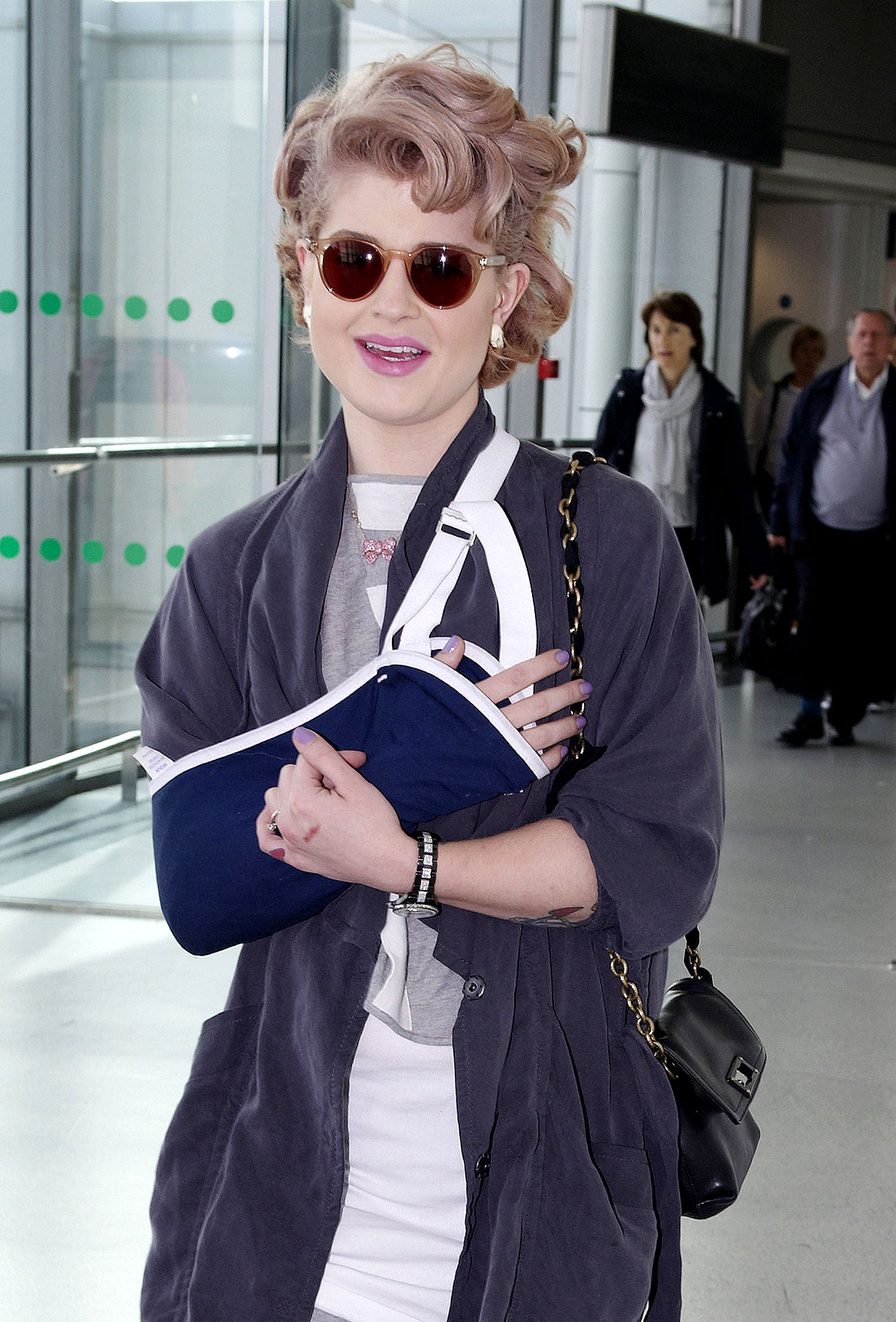 Kelly Osbourne Has A Hurty Elbow (PHOTOS)
