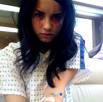 Demi Lovato Roughed Up and Hospitalized! (PHOTO)
