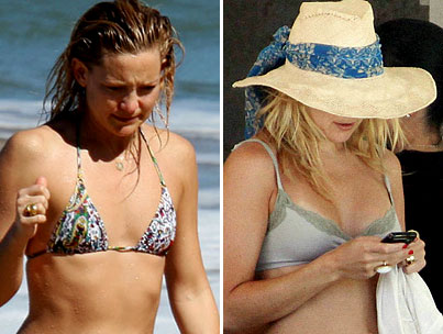 Did Kate Hudson Get Breast Implants?