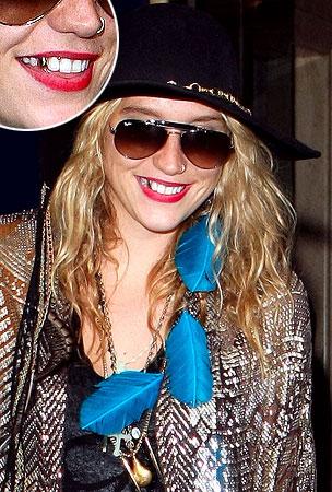 Ke$ha's New Gold Tooth: Yay or Nay? (PHOTOS)
