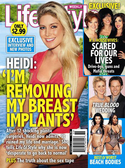 Heidi Montag Wants a Breast Reduction